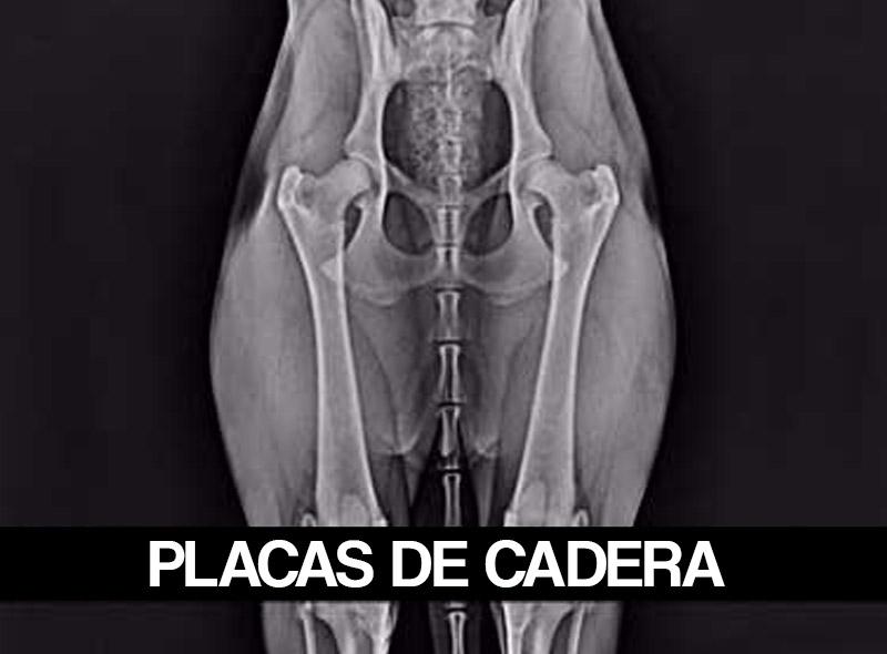 placas-de-cadera