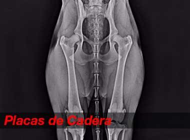 placas-de-cadera-2017b