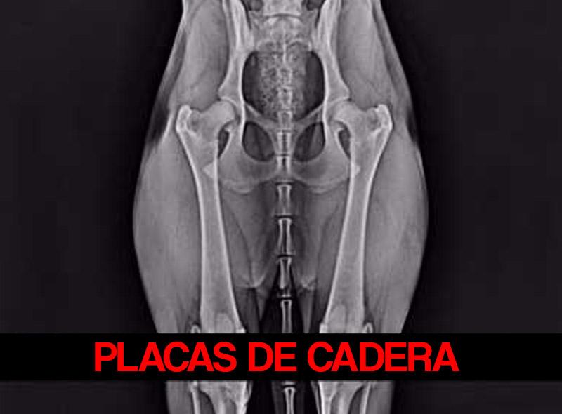 placas-de-cadera-red